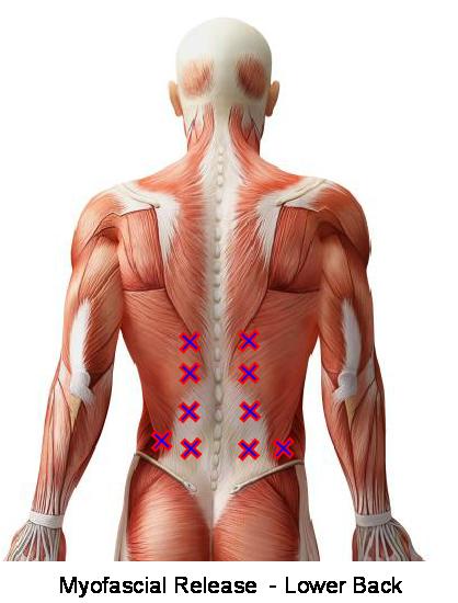Myofascial Release - Lower back